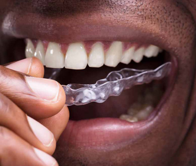man-putting-in-night-guard-for-teeth